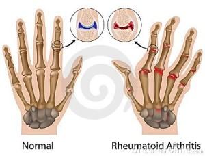 rheumatoid-arthritis-hand-22366005